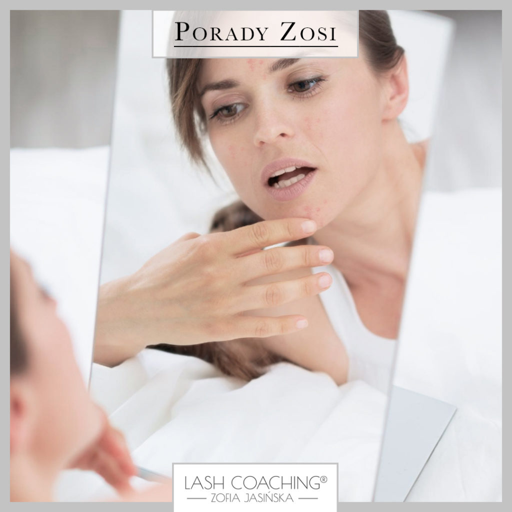 20_08_2020_Lash_POST_1_porady